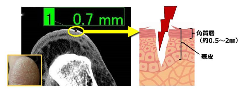 かかと荒れ ケア ユースキン かかと荒れの様子をMRIで分析